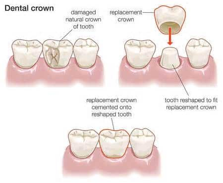 diagram of dental crowns